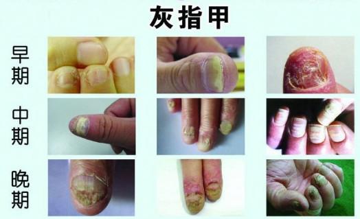 灰指甲的发病原因主要是什么-绍兴灰指甲治疗哪里好